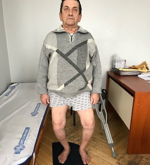Деформация колена - до операции