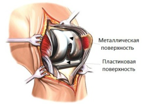 Эндопротезирование коленного сустава
