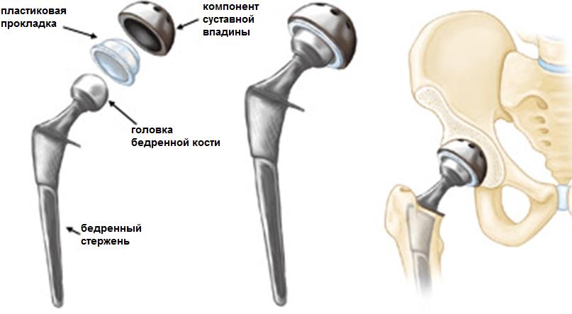 Эндопротез для тазобедренного сустава цена левого локтевого сустава
