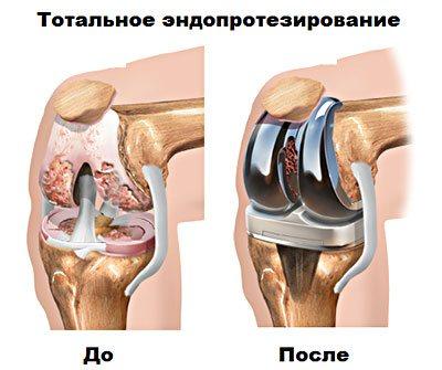 Замена коленного сустава в украине стоимость народныесредства лечения артроза коленногосустава