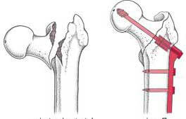 Ендопротезування шийки стегна