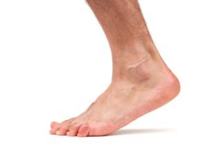 Разрыв связок голеностопа