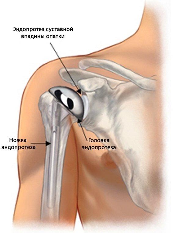 Замена плечевого сустава цена