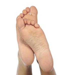 Вальгустная деформация стопы