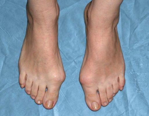 Вальгусная деформация большого пальца стопы у женщин