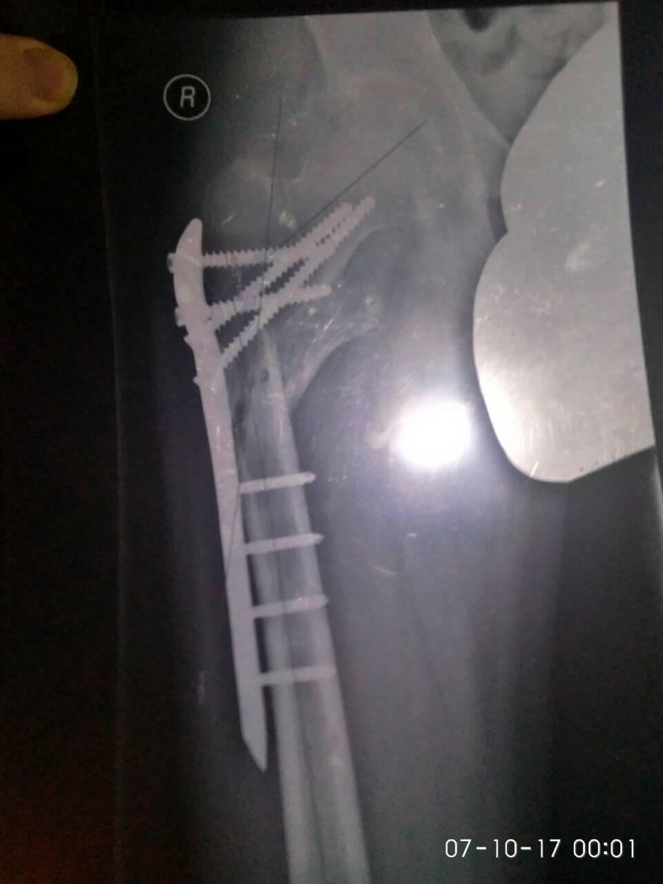 Рентген верхней трети правого бедра с пластиной