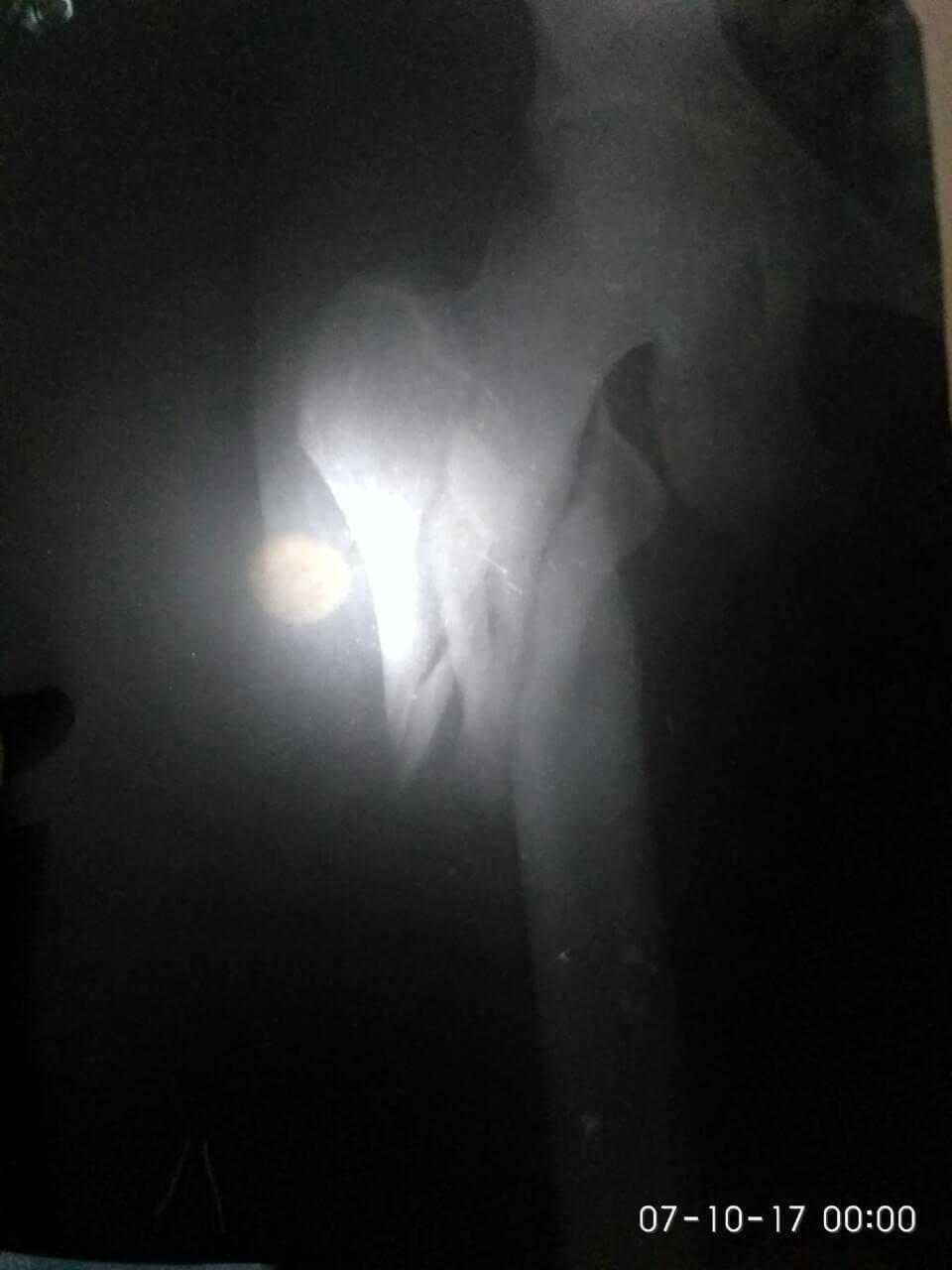 Рентген верхней трети правого бедра