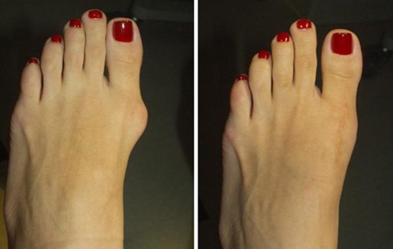 Косточки на ногах - до и после