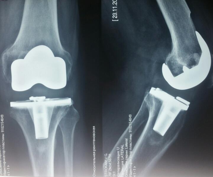 Контрольный осмотр пациента после замены коленного сустава