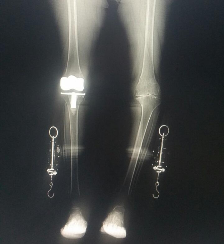 Пациент до эндопротезирования