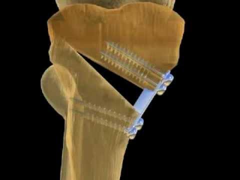 Остеотомия колена