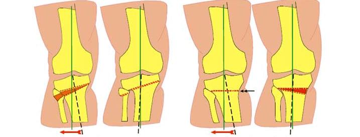 Остеотомія операція