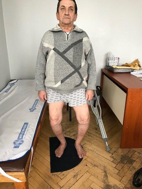 Деформація коліна - до операції