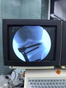 Деформация коленного сустава
