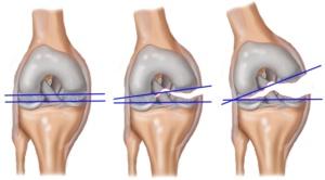 Диагностика травмы крестообразной связки