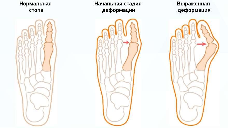 Косточка на ноге - лечение