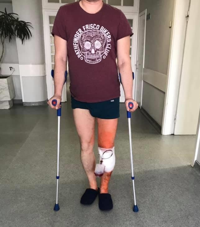 Восстановление после остеотомии