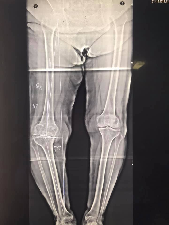 Заміна колінного суглоба в Києві