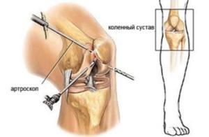 Артроскопия в Киеве