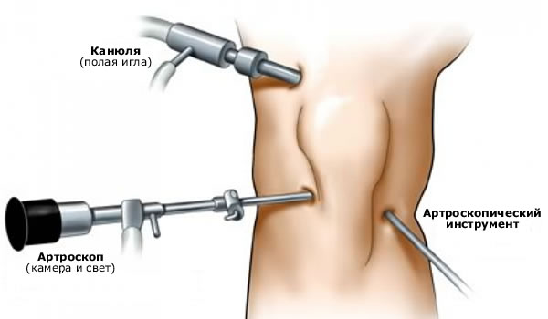 Артроскопія меніска Київ