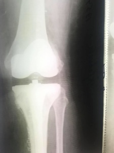 Эндопротез колена в Киеве