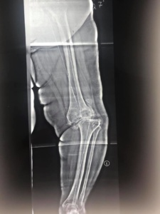 Замена колена при тяжелой деформации