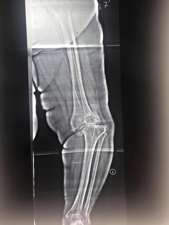 Заміна коліна при важкої деформації