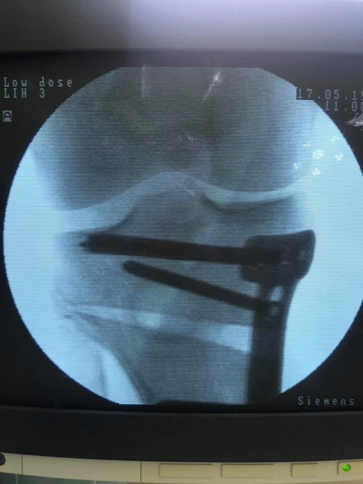 Результат остеотомии