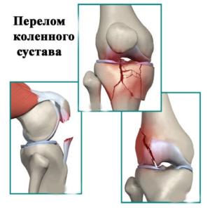 Лечение перелома колена