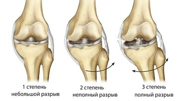 Степени разрыва связок коленного сустава