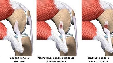Степень разрыва связок коленного сустава